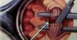 Anal Fissür Ameliyatı