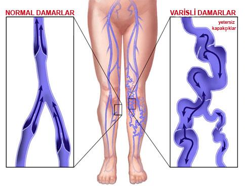 bacaklarda varis neden olur